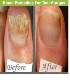 Home Remedy for Nail Fungal Prevention and Removal – Surreal Dream