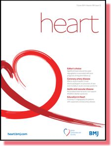 Exercise: moderation is best for the heart
