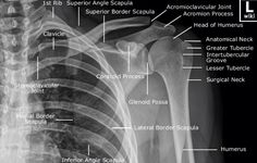 AP of the shoulder