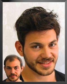 protezsac.com protez saç saç protezi protez saç kullananlar protez saç yorumları protez saç şikayetleri protez saç yaptırmak protez saç fiyatları hairlife protez saç ürünleri protez saç bakımı protez saç dökülmesi protez saç ücretsiz bilgi ve randevu 0212 291 03 41