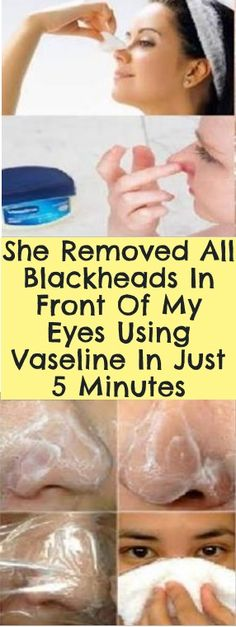 She Removed All Blackheads In Front Of My Eyes Using Vaseline In Just 5 Minutes! This is the simplest method to remove all blackheads without any pain and skin damage Take a hot shower, so that the pores around your blackheads can open up. Now take a ...