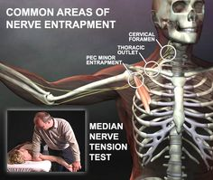 Anatomy of Nerve Entrapment. Shows the 3 most common areas where the arm nerves gets pinched. See our videos on how to fix it. www.realbodywork.com