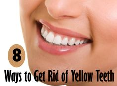 How to Get Rid of Yellow Teeth | Cute Parents