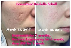 """Acne scars?? No Problem!! Danielle looks great!  """"I have Always been self conscious about my scars and large pores. This is one week of using Amp MD with reverse brightening and I've only rolled my face 3 times as per the instructions! I've also been using unblemish in the AM, which has taken care of my acne problem. Excited to see what my scars will look like at the month marker and beyond. I love these products! My face and skin feels so smooth!"""""""