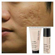 Mary Kay Primer, Mary Kay Microdermabrasion Set, May Kay, Mk Men, Korean 10 Step Skin Care, Imagenes Mary Kay, Mary Kay Brasil, Acne Dark Spots, Mary Kay Makeup
