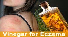Apple Cider Vinegar For Eczema On Scalp https://applecidervinegarguide.com/apple-cider-vinegar-for-eczema-on-scalp/