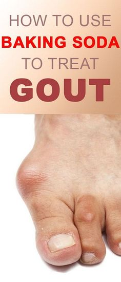 SWOLLEN FEET REMEDIES Gouts are caused due to a high increase of acid levels in the body. You will feel acute pain, swelling, intense tenderness, and inflammation at the joints if you are suffering from gout. Home Remedies For Gout, Gout Remedies, Natural Remedies, Health Remedies, Holistic Remedies, Baking Soda Health, Baking Soda Benefits, Baking Soda For Hair, Baking Soda Shampoo