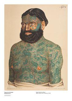 ☞ MD ☆☆☆ L'homme tatoué de Birmanie: portrait par Heitzmann (1856-76), planche 336, Atlas des maladies de la peau de Ferdinand Von Hebra. (v/@phtiriase).