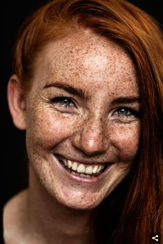 Freckled people