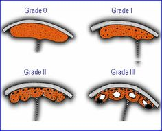 placental grades