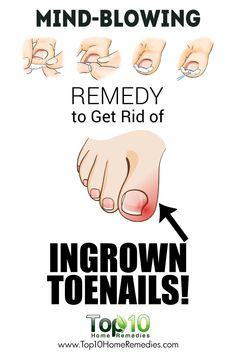 Watch This Video Mind Blowing Home Remedies for Toenail Fungus that Really Work Ideas. Astonishing Home Remedies for Toenail Fungus that Really Work Ideas. Ingrown Hair Remedies, Toenail Fungus Remedies, Top 10 Home Remedies, Natural Home Remedies, Holistic Remedies, Health Remedies, Foot Remedies, Herbal Remedies, Ingrown Nail