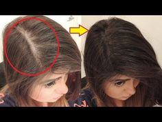 Pin on Health Medium Hair Cuts, Medium Hair Styles, Face Yoga, Hair Arrange, Make Beauty, Beauty Routines, Up Hairstyles, Health And Beauty, Beauty Hacks