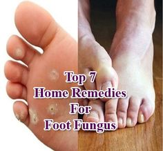 Although there are many natural foot fungus treatments, the use of essential oils for foot fungus gives faster and clearer results because oil can penetrate under the skin and quickly cure the problem. Toenail Fungus Vinegar, Toenail Fungus Remedies, Fungus Toenails, Toenail Fungus Medication, Corn Removal, Foot Remedies, Toenail Fungus Treatment, Best Essential Oils