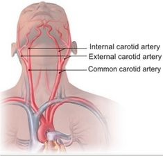 Deepam Medi Tours - Carotid Artery Disease Treatment in India
