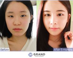 Your appearance can be improved by eyes and a nose surgery at Grand. For free consultation Tel: (+82) 70-7119-1580 Mobile: (+82) 10-7156-6546(Whatsapp, Line, Kakaotalk, Viber, iMessage) Email: grandps.en@gmail.com Facebook: facebook.com/grandplasticsurgery Webstie: eng.grandsurgery.com Pinterest : https://www.pinterest.co.kr/grandps_eng/ Tumblr: http://grandsurgery.tumblr.com/ Instagram: grandps_eng