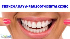 Dr hussein bushnaq bds mfds rcs msc uk at just white dental evaluate and qualify yourself with your dentist for dental implant restore your smile in a day by our team of experienced dentists at realtooth dental solutioingenieria Image collections