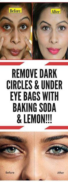 Remove Dark Circles Under Eye Bags with Baking Soda Lemon! Remove Dark Circles Under Eye Bags with Baking Soda Lemon! Baking Soda And Lemon, Baking Soda Uses, Health Tips For Women, Health And Beauty, Health Advice, Home Beauty Tips, Beauty Hacks, Diy Beauty, Beauty Secrets