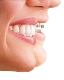 Thought of straightening teeth without using metal braces? Invisible braces known as Invisalign can help you to get there! At Cosmetic dentist Melbourne, our treatment of Invisalign offer teeth straightening with nearly invisible braces.