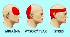 Trápí vás migrény a bolesti hlavy? Podívejte se na to, jak se zbavit bolesti hlavy bez prášků, pouze rychlou a efektivní masáží. Acupuncture, Acupressure Treatment, Migraine Relief, Pain Relief, Migraine Pain, Migraine Remedy, Getting Rid Of Headaches, Health Tips, Aspirin