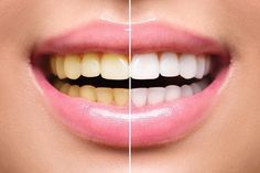 Baking soda can be used for removing stains from the teeth surface. Teeth after soda become whiter and brighter. By brushing your teeth with baking [. Dental Check Up, Dental Veneers, Dental Problems, Best Dentist, White Teeth, Cosmetic Dentistry, Oral Health, Dental Care