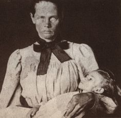 """A Boer woman with her dead child, the last of her children to die, photographed by Emily Hobhouse. An English activist, Emily spent six months in South Africa from January to June 1901 visiting Bloemfontein and six other concentration camps. Emily returned to England to campaign against """"a gigantic and grievous blunder caused by  crass male ignorance, helplessness and muddling."""" Her militancy brought the scorn of the British people who called her hysterical, a rebel, liar, enemy of the…"""