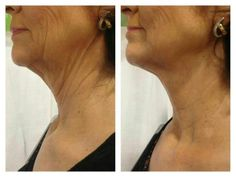 It Works body wraps before and after -chin and neck. Have you heard of that Crazy wrap thing? Want to tighten up under you chin?...check it out   https://shaynacross.myitworks.com/Shop