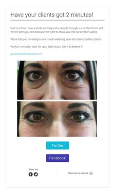 Instantly Ageless reduces the appearance of under-eye bags, fine lines, wrinkles and pores - Rezepte Botox Before And After, It Works Products, Eye Makeup Steps, Under Eye Bags, Rhinoplasty, Eye Make Up, Along The Way, Body Care, Eyebrows