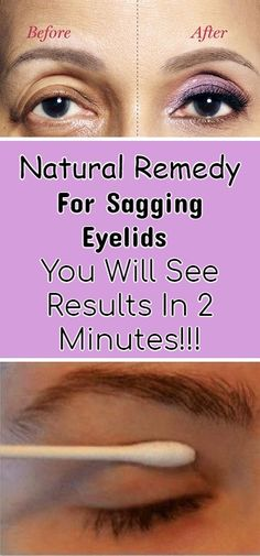 Natural Skin Remedies Natural Remedy For Sagging Eyelids You Will See Results In 2 Minutes! – Mind Blowing Page Health Tips For Women, Health Advice, Natural Skin, Natural Health, Saggy Eyelids, Sagging Skin, Natural Medicine For Anxiety, Fitness Motivation, Fitness Tips