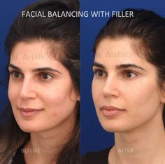 nonsurgical_face_injections_filler_eyelids_lip_augmentation_01; nonsurgical_face_injections_filler_eyelids_… | Cheek fillers, Under eye fillers, Facial fillers Under Eye Fillers, Cheek Fillers, Botox Fillers, Dermal Fillers, Botox Under Eyes, Under Eye Wrinkles, Cheek Implants, Lip Augmentation, Face Injections