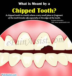 what is meant by a chipped tooth