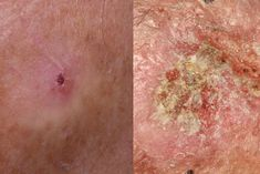 These skin cancer pictures will help you differentiate the different types, including basal cell and squamous cell carcinomas, melanoma, actinic keratosis, and merkel cell carcinoma. Mohs Surgery, Squamous Cell Carcinoma, Insect Bites, Close Image, Cancer, Type, Pictures, Photos, Photo Illustration