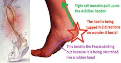 This ONE Stretch Relieves Plantar Fasciitis, Shin Splints, Achilles Pain And Heel Pain
