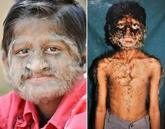 From Blue Skin to the Werewolf Syndrome, a description and pictures of some of the most rare skin diseases and skin conditions ever seen.