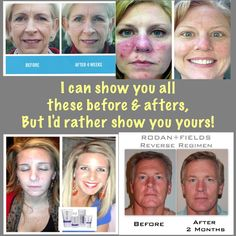 Let YOUR before & after picture be the next one I post! You deserve to look wonderful & LOVE the skin you're in!