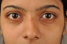 Puffy Eyes: Causes, Treatments, & Home Remedies