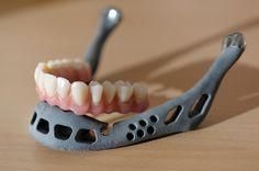 Implantes gracias a la #impresion3D.