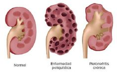 10 Síntomas de una enfermedad renal que debes saber