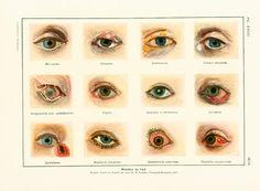 Original antique print taken from the Larousse Médical illustré published in…