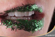 #Carillasestéticas Carillas dentales estéticas realizadas por la dentista especialista en #estéticadental en Propdental