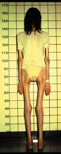 8 Best Anorexic Body Anatomy Images On Pinterest Anatomy Of The