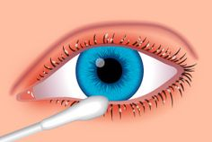Blepharitis (a common eyelid inflammation) can be relieved by good eyelid hygiene and massages - AllAboutVision.com