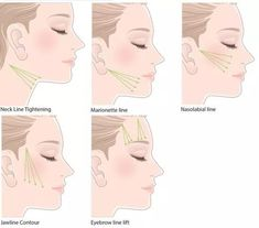 9 Best PDO thread for face or body lifting images in 2015 | Safety