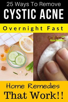 Cystic Acne: 25 Natural Cystic Acne Treatments that Really Work Fast, How To Get Rid Of Cystic Acne, Home Remedies For Cystic Acne, Causes and Symptoms of Cystic Acne, Cystic acne is considered hard to treat. But the right approach for treating cystic acn Cystic Acne Remedies, Cystic Acne Treatment, Oily Skin Treatment, Best Acne Treatment, Natural Acne Remedies, Scar Treatment, Home Remedies For Acne, Acne Treatments, Makeup