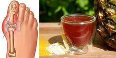 La forma más rápida para bajar el ácido úrico, detener el dolor articular y la gota!