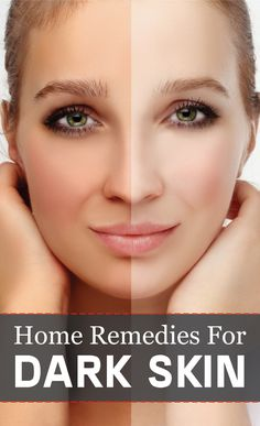 Here are 8 remedial measures that you can adopt to remove and treat skin tags.