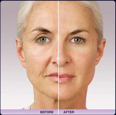 Before & After - Juvederm