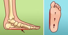 10 reasons why your feet hurt all the time and how to fix it