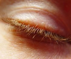 Get Rid of Crows Feet Naturally: 10 Best Home Remedies for Removing Laugh Lines Around Eyes