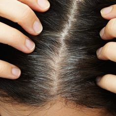 Cover up your grey hairs naturally with a Sage Vinegar Rinse. The Sage Rinse for Grey hair will make your hair healthier and shiny without harsh chemicals. White Hair Treatment, Covering Gray Hair, Prevent Grey Hair, Hair No More, Mustard Oil, Hair Skin Nails, Hair Remedies, Tips Belleza, Hair Oil