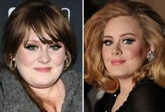 Celebrity Adele Nose Job - http://www.celeb-surgery.com/celebrity-adele-nose-job/?Pinterest